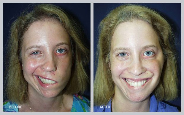 Rather before and after facial paralysis something