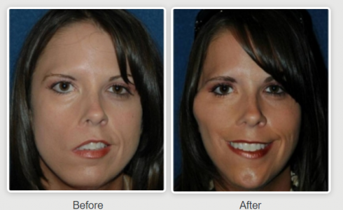 Facial reanimation without surgery